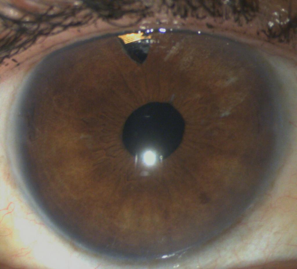 Bei 12 Uhr ist ein Teil des Sensors in der Iridektomie (kleine Eröffnung der Iris) zu erkennen.